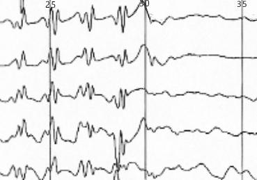 EEG%20Waves%20V2